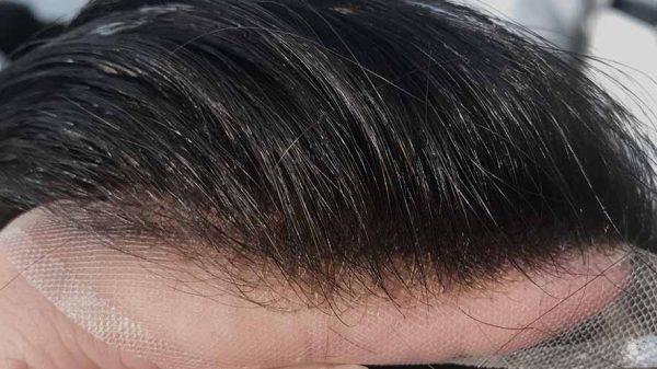hair systems