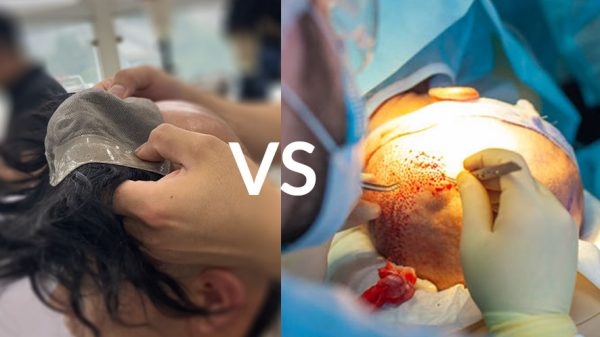 Nonsurgical Hair Replacement System vs Hair Transplant